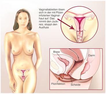 Pilzinfektion Vagina