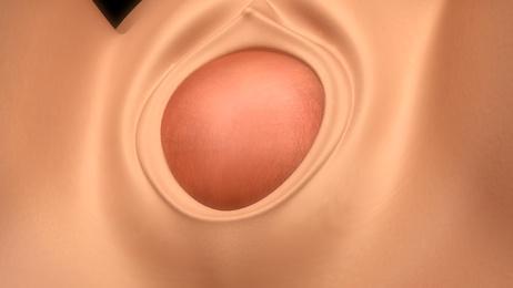 Vaginaldehnung
